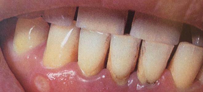 Гнойник на внутренней стороне губы