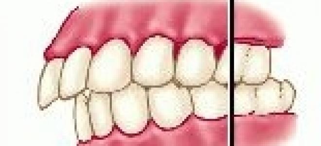 Удаление 4 зуба сверху