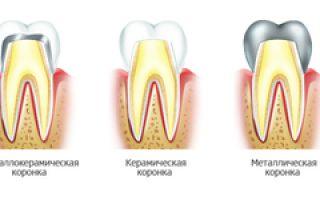 Коронка на жевательный зуб