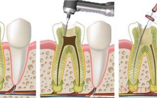 Оголенный нерв зуба что делать
