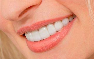 Накладки на зубы виниры
