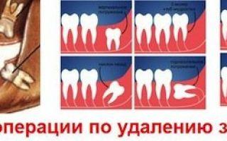 Кариес на зубе мудрости