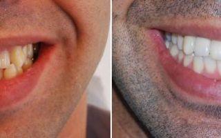 Пластинка на зубы до и после