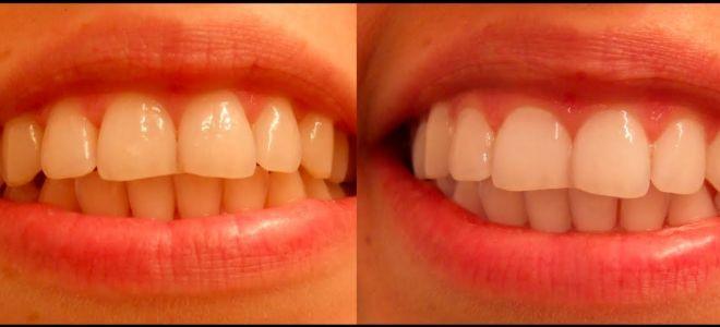 Активированный уголь отбеливание зубов