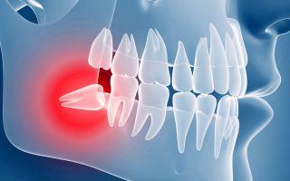 Ретинированный зуб что это такое
