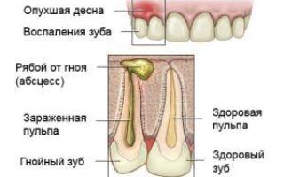 Зубной абсцесс