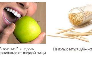 Зубной штифт