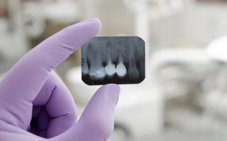 Отек после лечения зуба