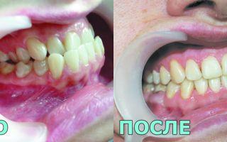 Пластины для выравнивания зубов у взрослых