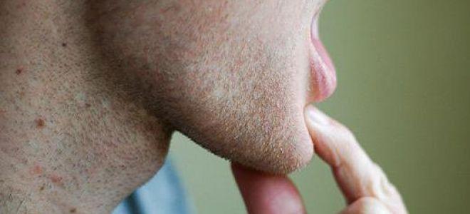 Болит челюсть возле уха при открытии рта