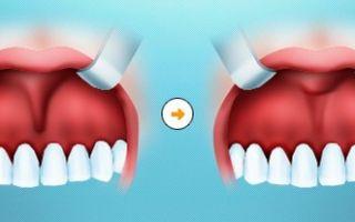Подрезать уздечку верхней губы
