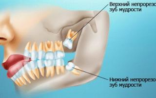 Ноют зубы что делать