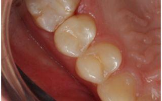 Кариес сбоку зуба