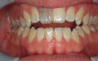 Болит мертвый зуб