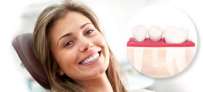 Российские импланты зубов