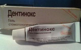 Капли для зубов обезболивающий