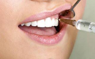Может ли сам выпасть коренной зуб