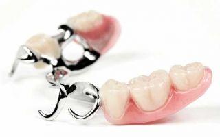 Вставить коренной зуб