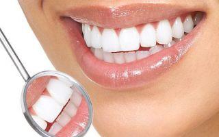 Как делают виниры на зубы