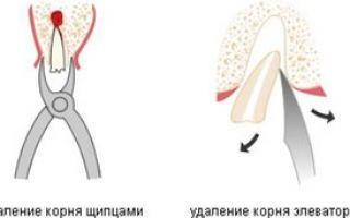 Удаление корешков зуба