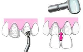 Виниринговое покрытие зубов