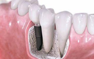 Как бесплатно сделать зубы