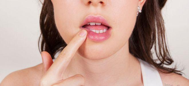 Хейлит на губах как лечить