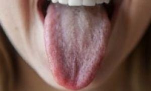 Почему язык белый налет причины