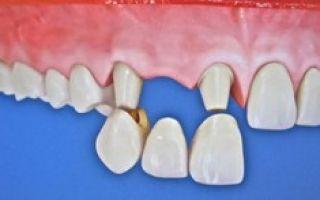 Как выглядит зубной мост