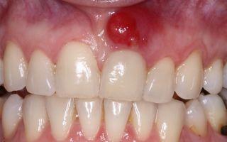 Гноится лунка после удаления зуба что делать