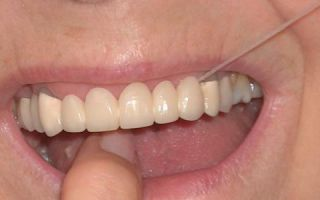 Зубной мост что это такое