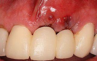 Чем опасна имплантация зубов