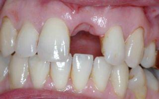 Выпал сгусток после удаления зуба
