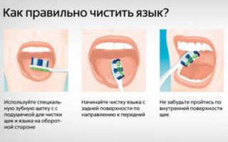 Гнилой запах изо рта причины и лечение
