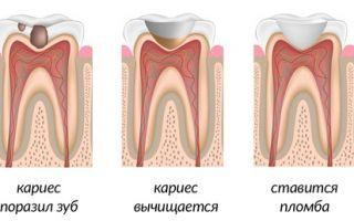 Какие пломбы бывают для зубов