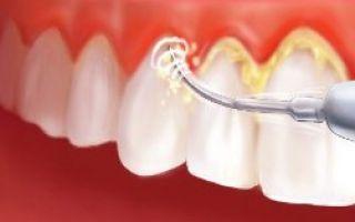 Как снять камни с зубов
