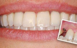 Имплантация зубов процесс