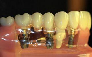 Сроки имплантации зубов