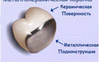 Протезирование зубов несъемные протезы