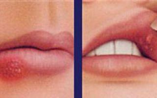 Язвы на внутренней стороне губы