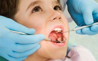 Надо ли лечить кариес молочных зубов