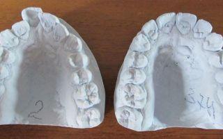Слепки зубов для брекетов