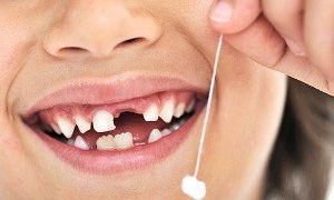 Сколько растет зуб после молочного