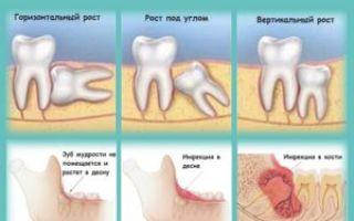 Удаление зуба мудрости беременным