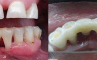 Что такое шинирование зубов при пародонтозе