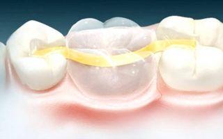 Зубной микропротез