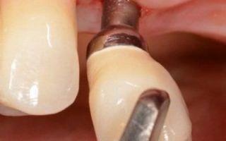Удаление передних нижних зубов