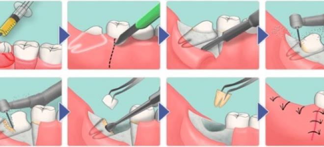 Ретинированного и дистопированного зуба что это