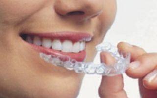 Отбеливание зубов капами