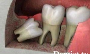 Сколько у человека зубов мудрости